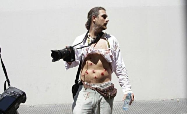 Más de 35 periodistas fueron golpeados y heridos por policías y gendarmes en las recientes movilizaciones al Congreso